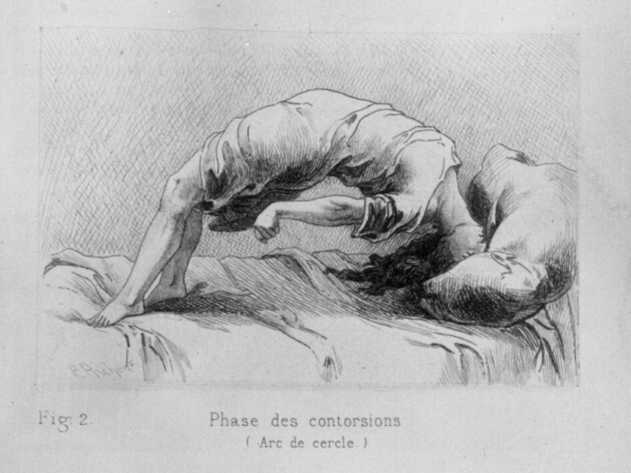 Mythe de l'hystérie, illustration de Paul Richer