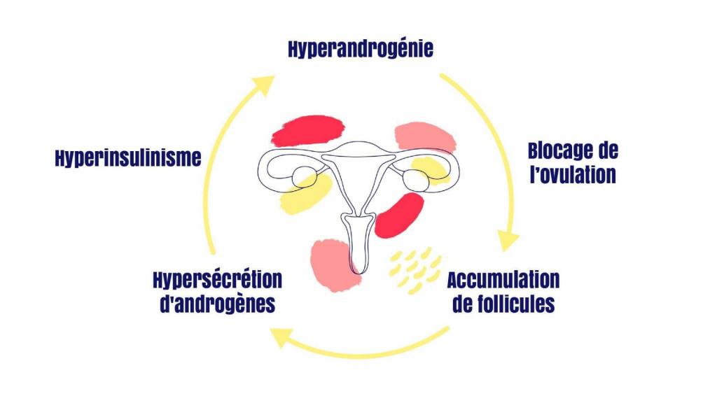 Schéma des symptômes du SOPK